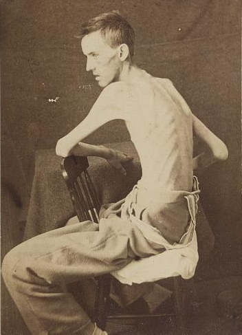 19 May 1864 This is a cropped version of an image of 20-year-old Pvt. Jackson O. Broshears of the 65th Indiana Infantry taken after his release from the Confederate prison at Belle Isle, Va. He lost nearly 80 pounds